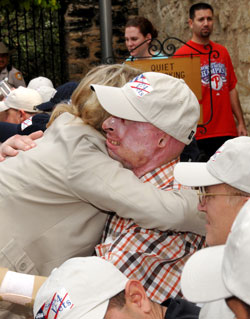 Photo:  A woman hugs a man wearing a ball cap.  He has severe burn scars on his face, ears, and hands.